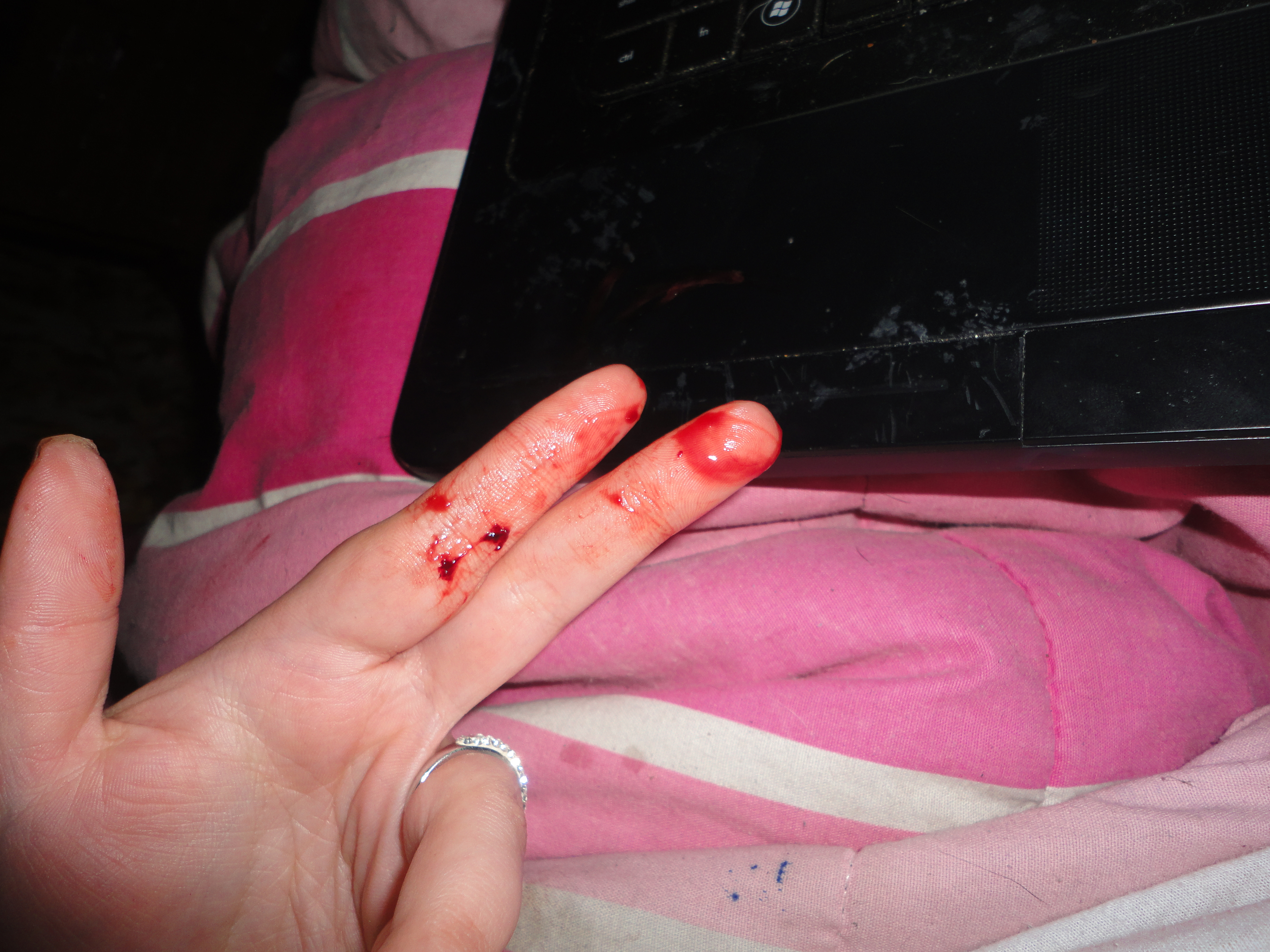 Выделения с кровью у женщины